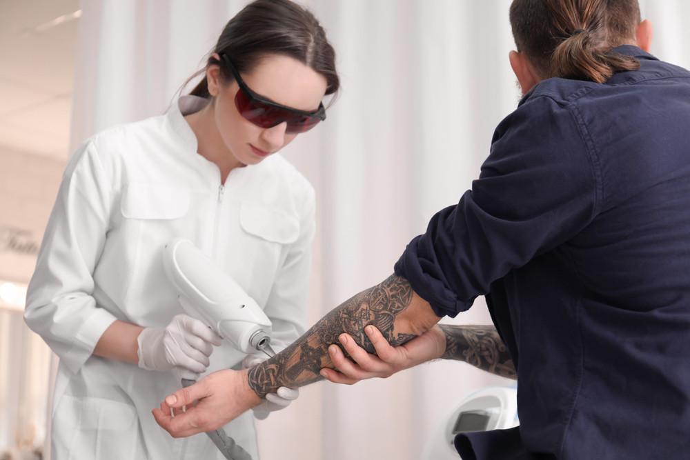 Laserowe usuwanie tatuażu – jak przebiega zabieg i jakie daje efekty?