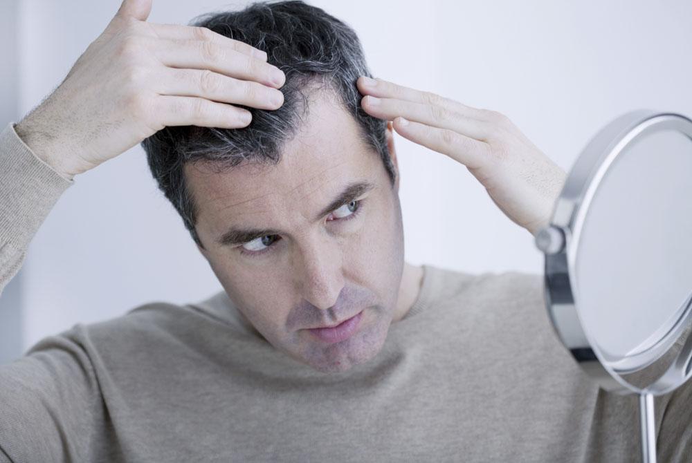 Przeszczep włosów - na czym polega zabieg?