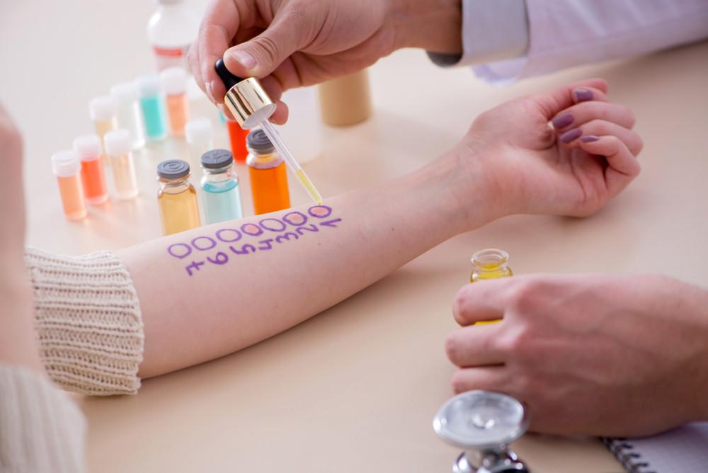 Alergia - testy skórne