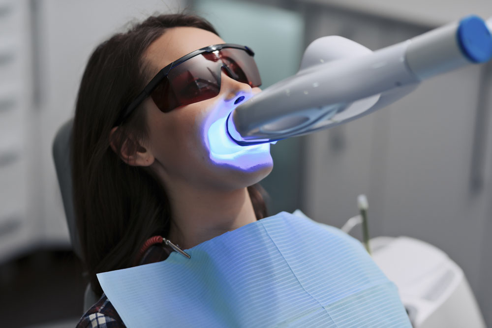 Laserowe wybielanie zębów - zabieg