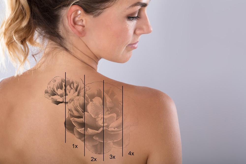 Usuwanie tatuażu na plecach