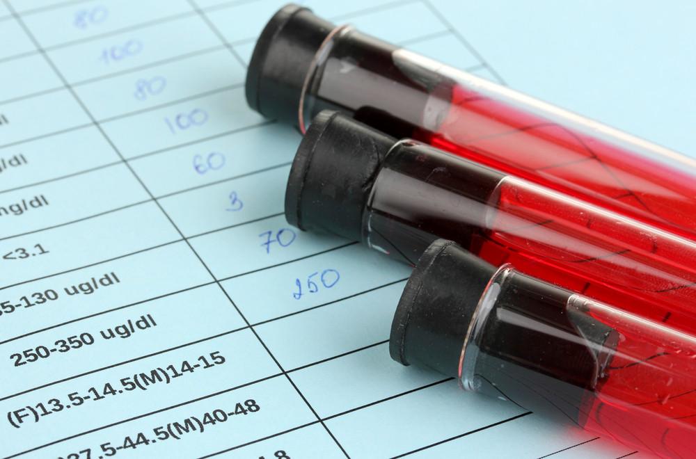 Próbki krwi do badania