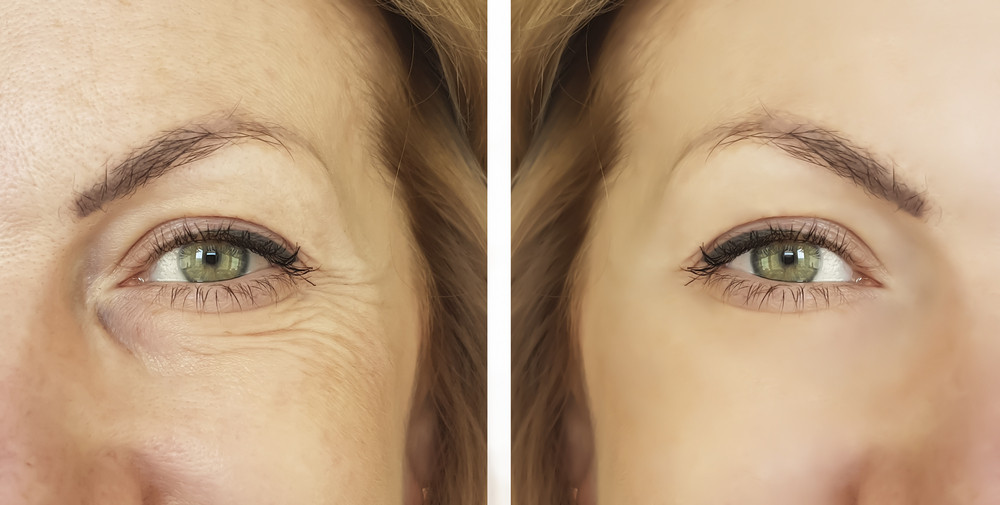 Porównanie twarzy przed i po zabiegu