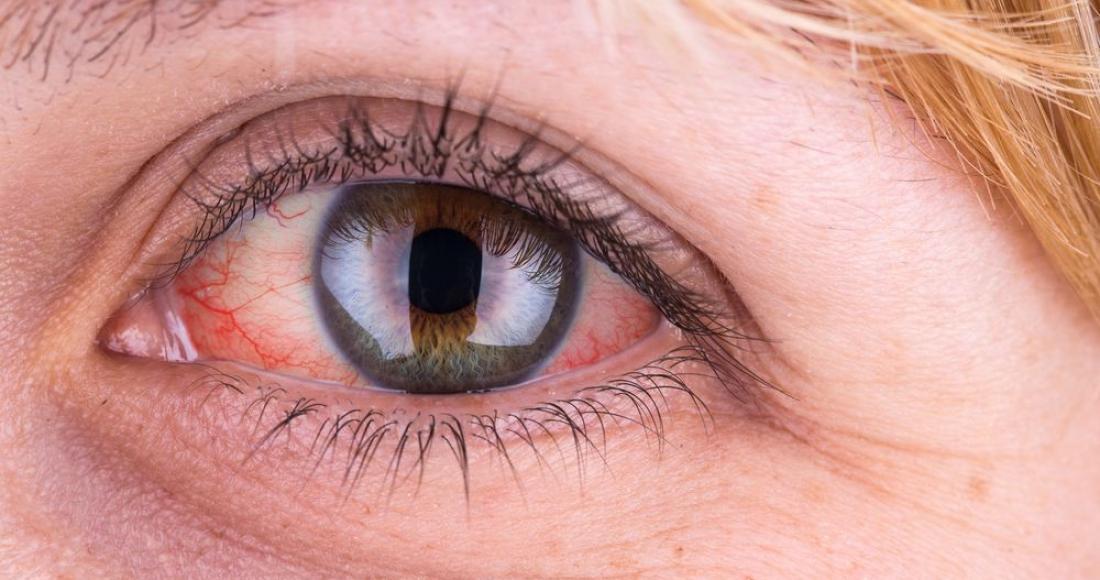Czerwone oczy - co może być przyczyną przekrwionych oczu?