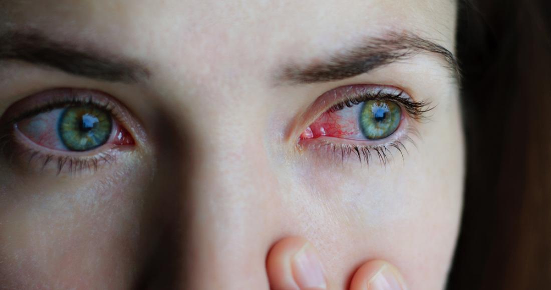 Zapalenie spojówek – rodzaje i  jego przyczyny