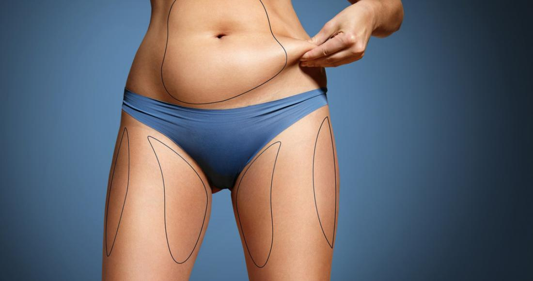 Liposukcja kawitacyjna – na czym polega zabieg?